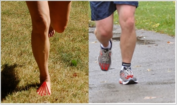 How Barefoot Running Aids with Extreme Bunion Pain