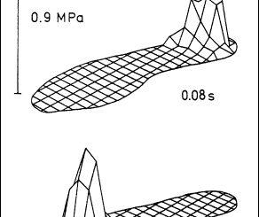 Foot Pressure Pattern Big Problem in Heel Strike Runners