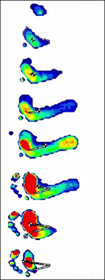 Forefoot Strike Plantar Pressure Distribution Pattern When Running