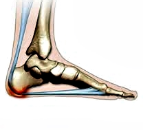 Severe Heel Pain While Running