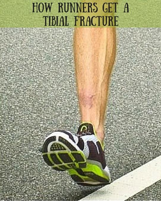 stress fracture leg