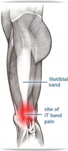 The Cause of IT Band Pain in Runners