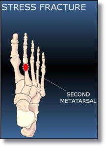 Heel Strike Running Broken Metatarsals