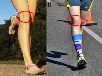 4 Tips to Relieve Sore Knees When Forefoot Running
