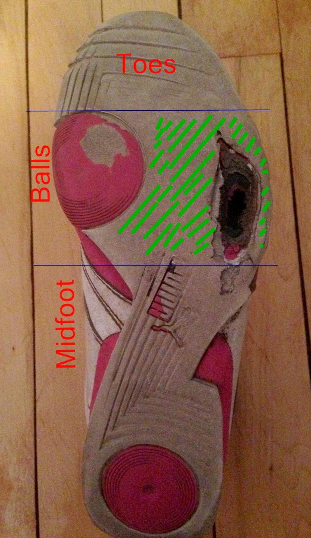 Running shoe wear patterns of a forefoot strike
