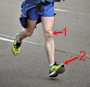 Shin Splints Compartment Syndrome