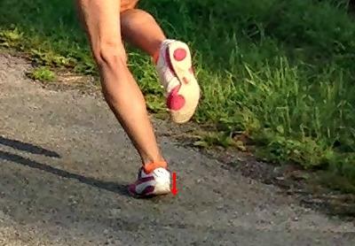 Achilles Tendon Injury Treatment - Eccentric Heel Drops