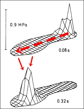 Foot Pressure Map of a Heel Strike Landing