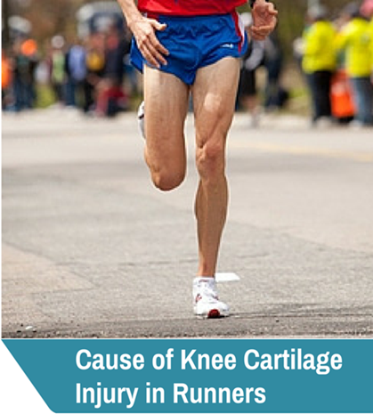 Why Runners Get Knee Cartilage Injury