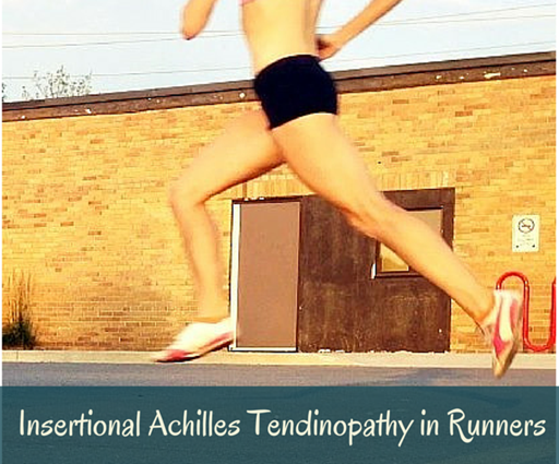 Insertional Achilles Tendinopathy in Runners