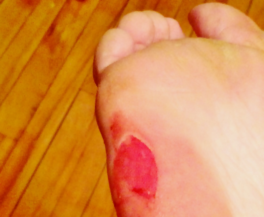 How to Treat a Blister on the Foot from Barefoot Running