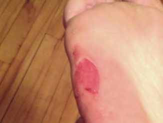 Natural Remedies for Blisters Healing