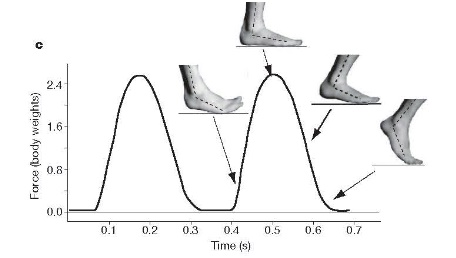 Orthotics and Running