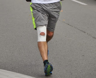 Dangers of a Knee Brace Strap for Runners