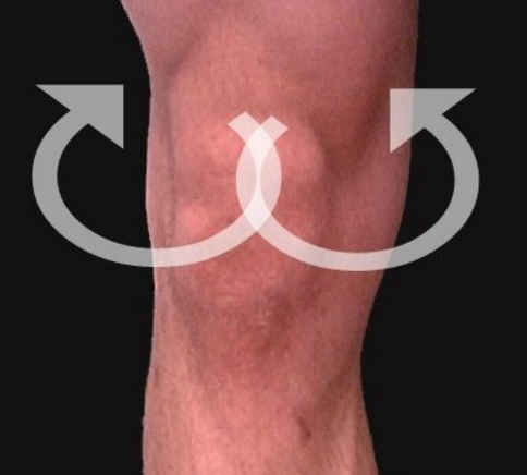 Recurring Knee Pain When Running