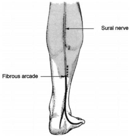 Sural Nerve Pain