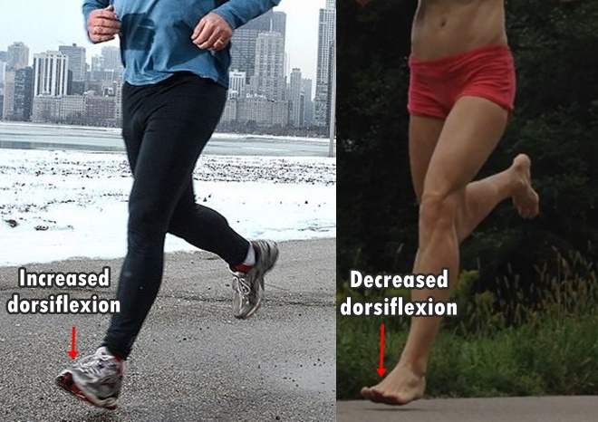 Forefoot Running and Knee Pain